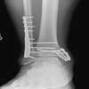 Broken ankle ( Open reduction and internal fixation )